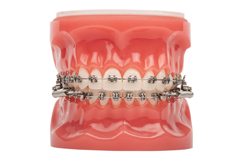 forsus orthodontic device