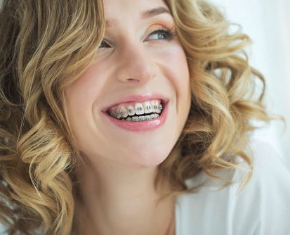 Orthodontics For Adults Herndon