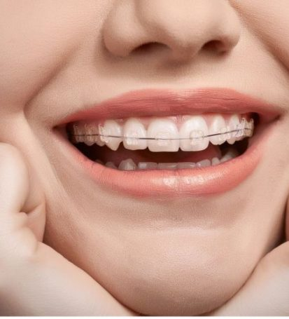 free consultation | orthodontic treatment | woman with braces