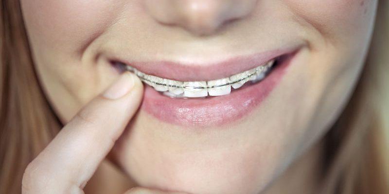 teenager-with-braces-KZEGTR9 (1